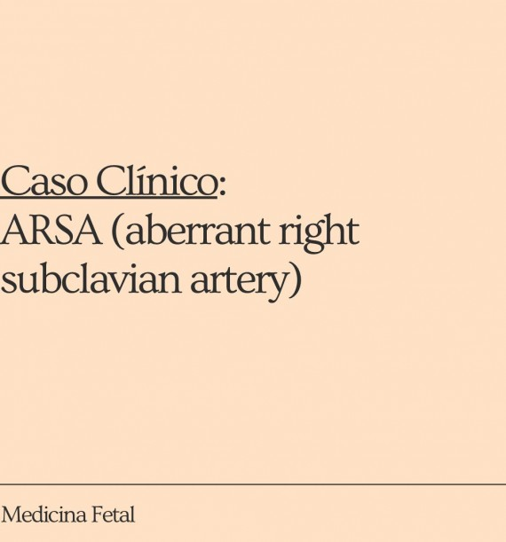 ARSA (aberrant right subclavian artery)